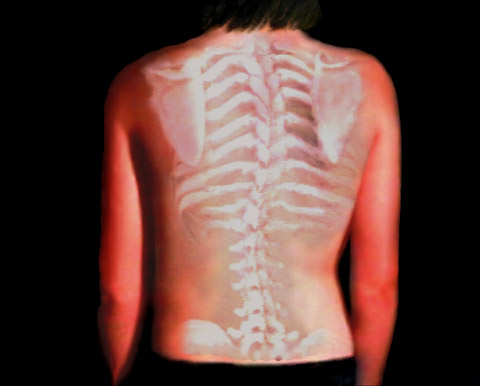 Back Rib Cage Fracture